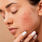 How Can I Recover my Acne Scars?