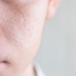 Why Are My Pores So Big?